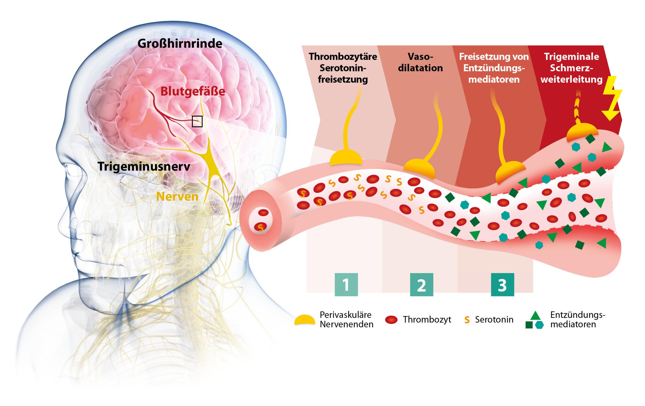 Der Mutterkraut Wirkmechanismus bei Migräne