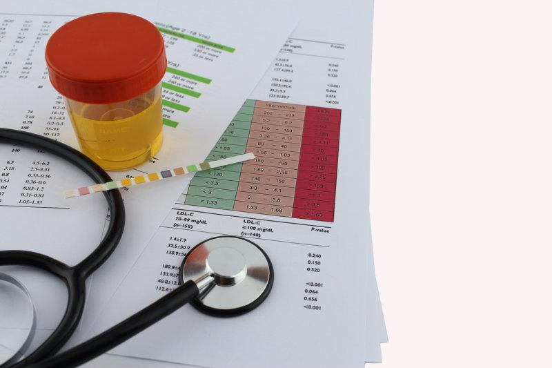 Bei Verdacht auf eine komplizierte Blasenentzündung wird eine Urinkultur angelegt.