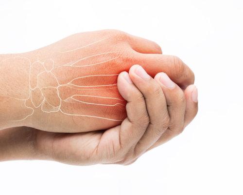 5 TIPPS BEI ARTHROSE IN DEN FINGERN